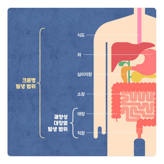 염증성장질환 발병 범위
