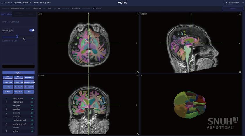 딥러닝을 포함한 인공지능 기술을 활용, 뇌 MRI 영상을 분석해 치매 및 인지장애를 평가할 수 있는 소프트웨어