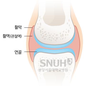 관절의 상세. 활막, 활액(관절액), 연골.