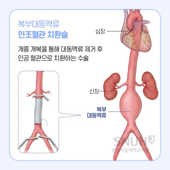 복부대동맥류 인조혈관 치환술