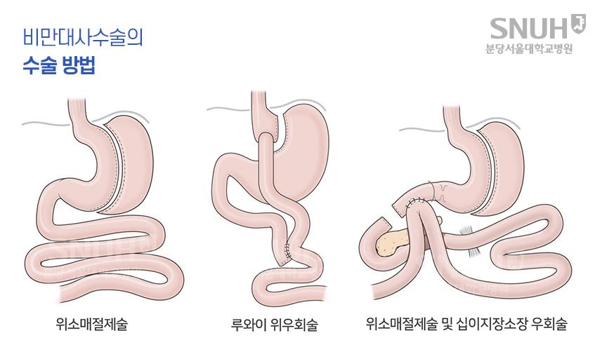 비만대사수술의 방법