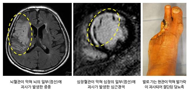 뇌혈관이 막혀 뇌의 일부(점선)에 괴사가 발생한 중풍, 심장혈관이 막혀 심장의 일부(점선)에 괴사가 발생한 심근경색 발로가는 혈관이 막혀 발가락이 괴사되어 절단된 당뇨족